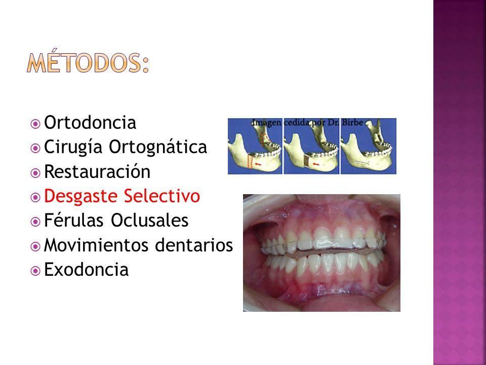 Ortodoncia Cirugía Ortognática Restauración Desgaste Selectivo Férulas Oclusales Movimientos dentarios Exodoncia