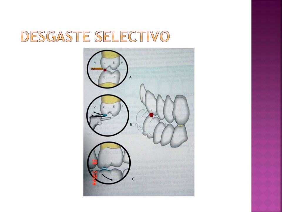 Es un procedimiento basado en la sustracción o desgaste de tejido dentario o material de restauración causante de interferencias oclusales.
