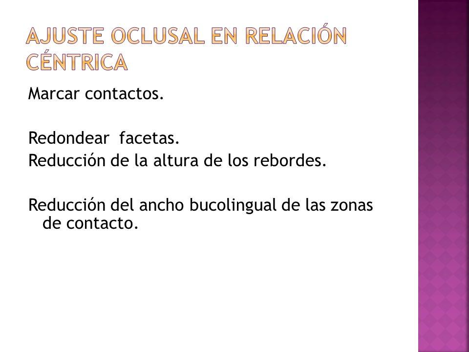 las posibles áreas de contacto coinciden con A, B y C siendo estas: V.