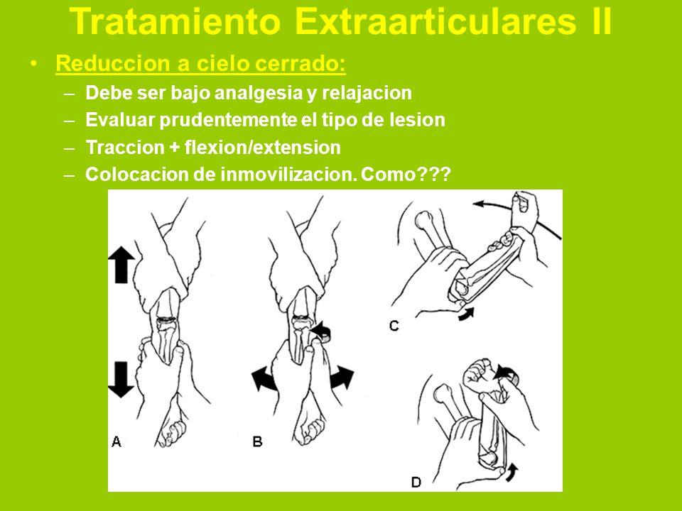 Tratamiento Extraarticulares III Traccion esqueletica: –Mas utilizada en niños –Indicaciones: imposibilidad de reduccion – Muy inestable
