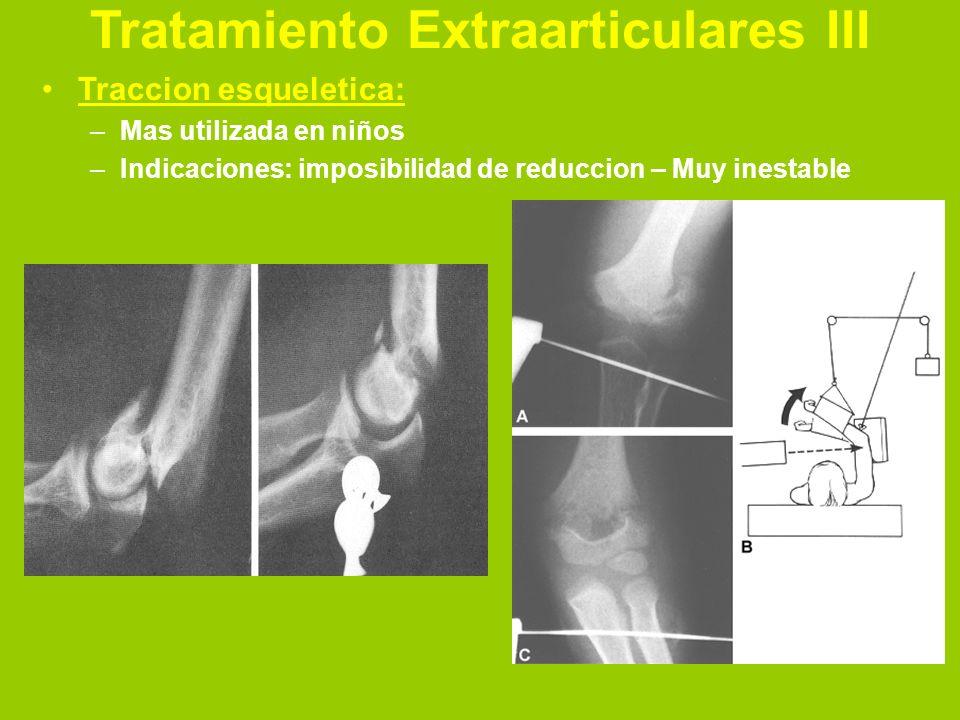 Tratamiento Extraarticulares IV Quirurgico: –Puede ser: Agujas percutaneas Reduccion abierta limitada y colocacion de clavijas RAFI