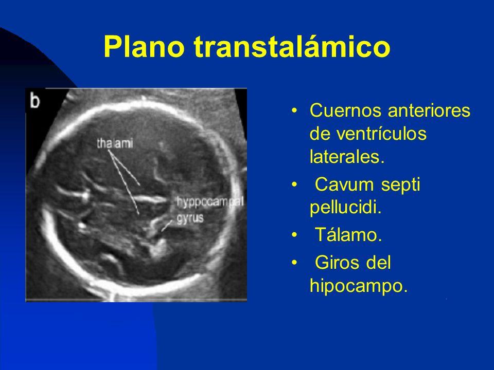 Plano transtalámico Cuernos anteriores de ventrículos laterales. Cavum septi pellucidi. Tálamo. Giros del hipocampo.