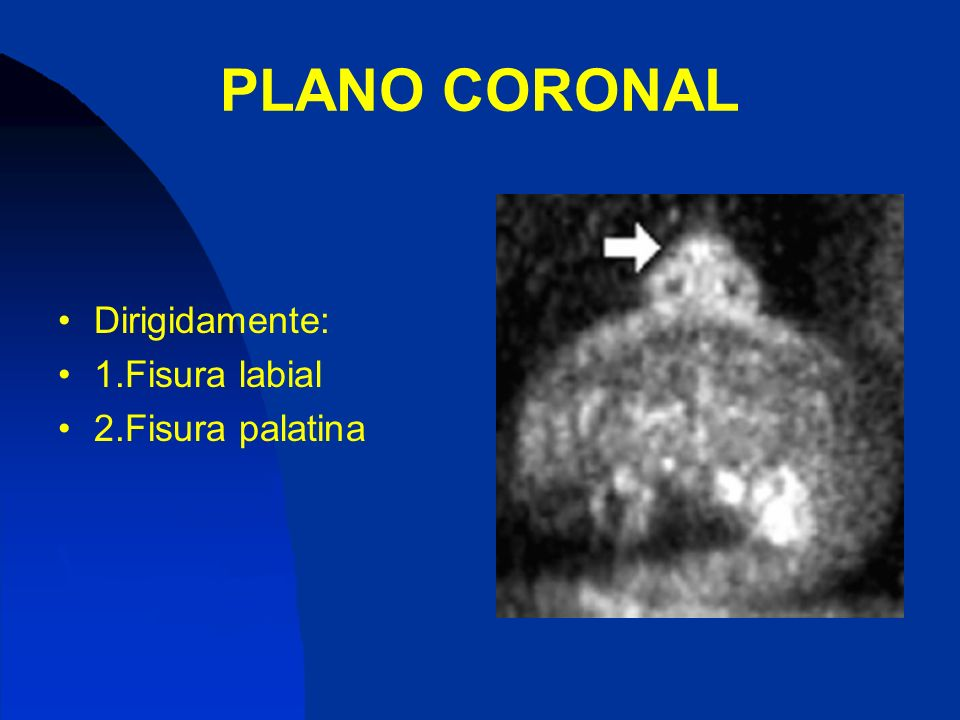 PLANO CORONAL Dirigidamente: 1.Fisura labial 2.Fisura palatina