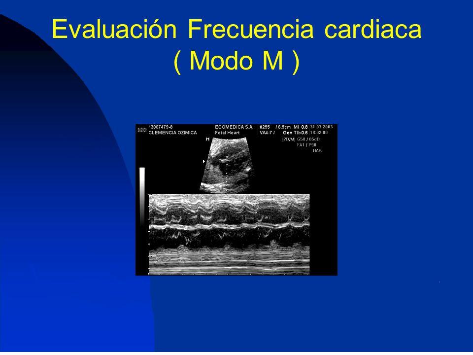 Evaluación Frecuencia cardiaca ( Modo M )