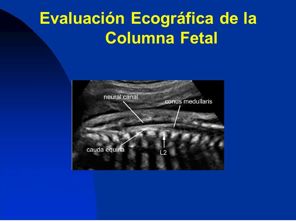 Evaluación Ecográfica de la Columna Fetal