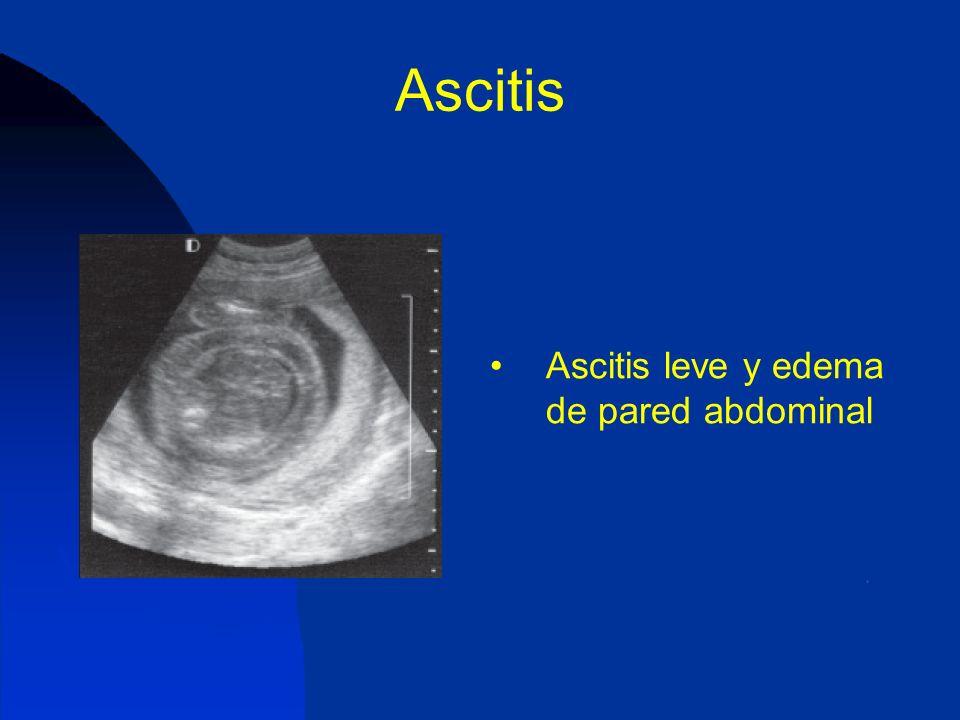 Ascitis Ascitis leve y edema de pared abdominal