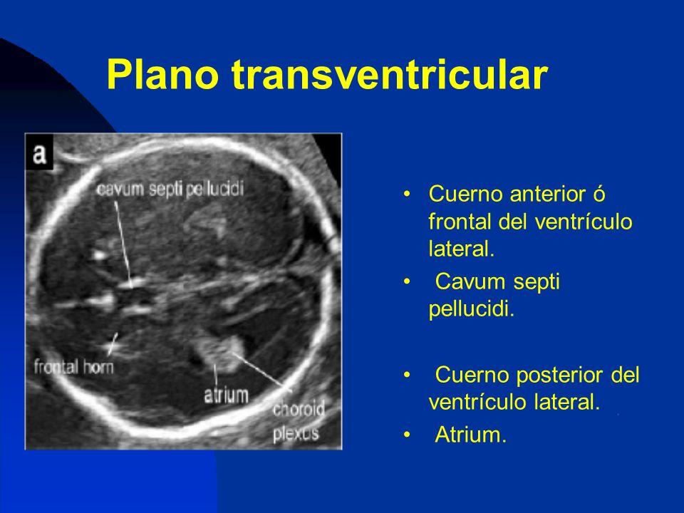 Plano transventricular Cuerno anterior ó frontal del ventrículo lateral. Cavum septi pellucidi. Cuerno posterior del ventrículo lateral. Atrium.
