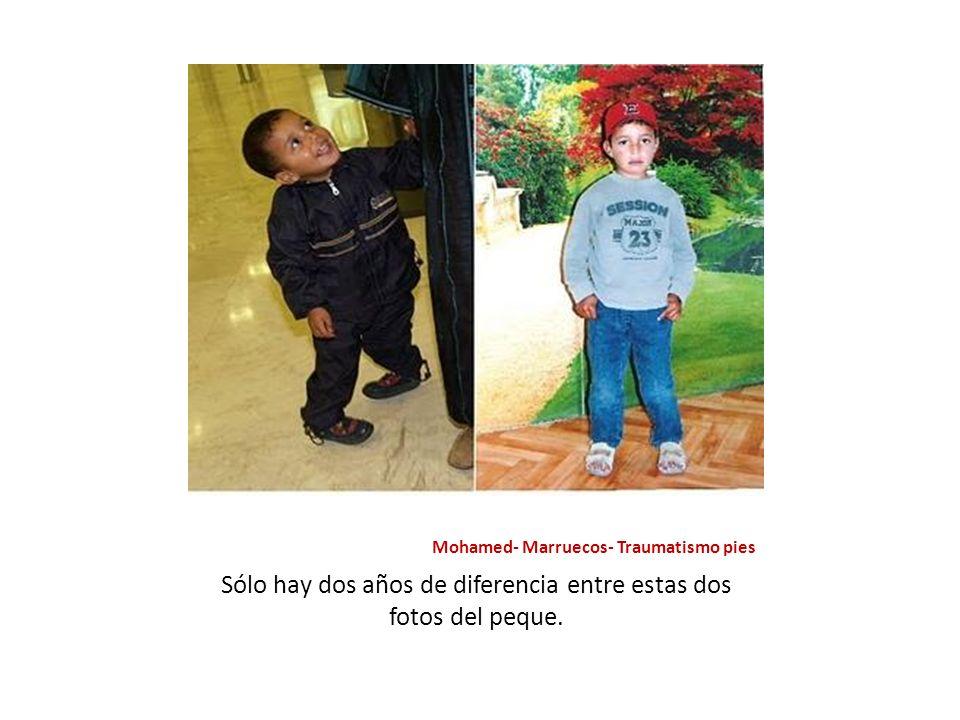 Mohamed- Marruecos- Traumatismo pies Sólo hay dos años de diferencia entre estas dos fotos del peque.