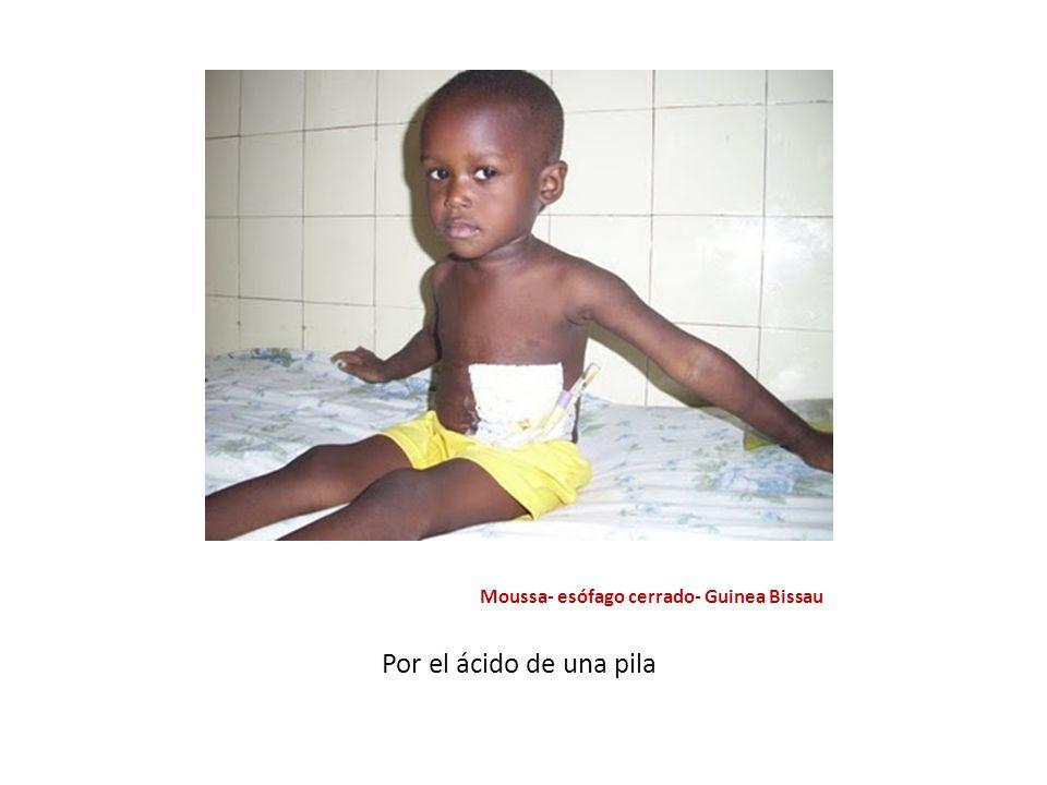 Moussa- esófago cerrado- Guinea Bissau Por el ácido de una pila