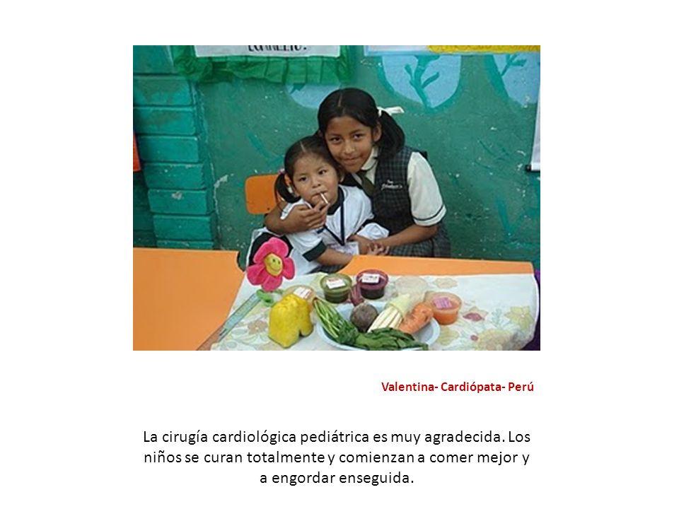 Valentina- Cardiópata- Perú La cirugía cardiológica pediátrica es muy agradecida. Los niños se curan totalmente y comienzan a comer mejor y a engordar