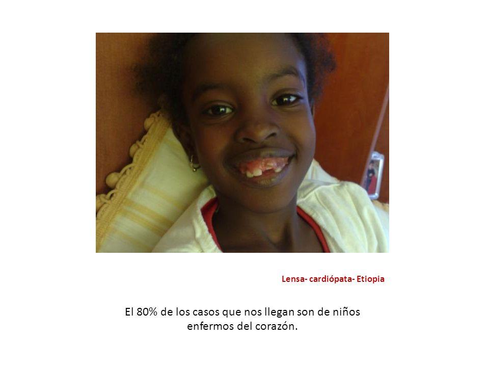 Lensa- cardiópata- Etiopia El 80% de los casos que nos llegan son de niños enfermos del corazón.