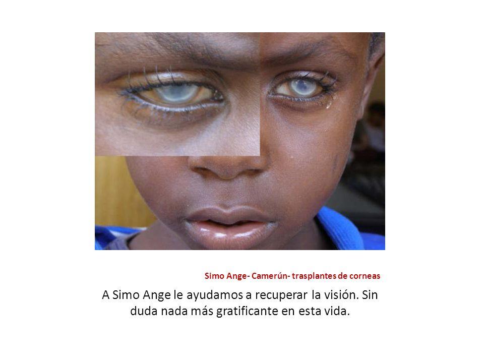 Simo Ange- Camerún- trasplantes de corneas A Simo Ange le ayudamos a recuperar la visión. Sin duda nada más gratificante en esta vida.
