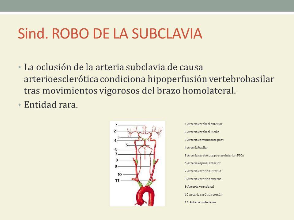 Sind. ROBO DE LA SUBCLAVIA La oclusión de la arteria subclavia de causa arterioesclerótica condiciona hipoperfusión vertebrobasilar tras movimientos v