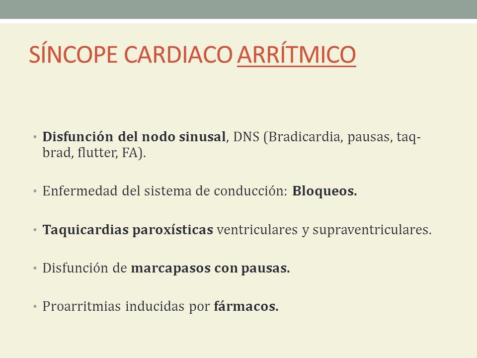 SÍNCOPE CARDIACO ARRÍTMICO Disfunción del nodo sinusal, DNS (Bradicardia, pausas, taq- brad, flutter, FA). Enfermedad del sistema de conducción: Bloqu