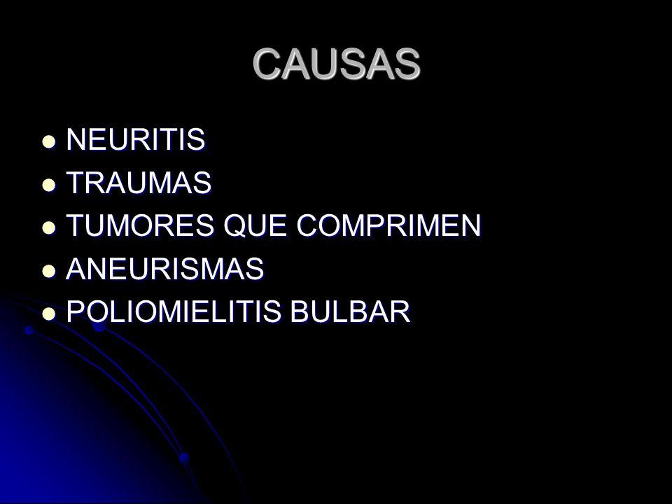 CAUSAS NEURITIS NEURITIS TRAUMAS TRAUMAS TUMORES QUE COMPRIMEN TUMORES QUE COMPRIMEN ANEURISMAS ANEURISMAS POLIOMIELITIS BULBAR POLIOMIELITIS BULBAR