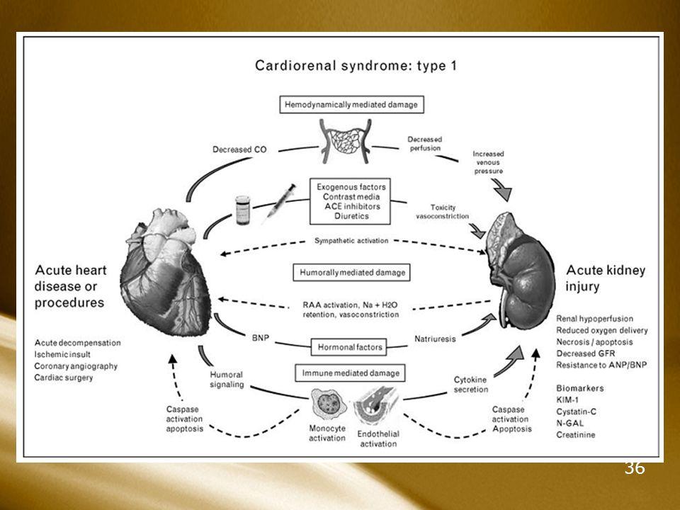 36 Sme Cardiorrenal 1, 2, 3, 4 >Sme cardiorrenal tipo 1 : Agudo. Más frecuente en pacientes con Fx renal deteriorada. Es un factor independiente de mo