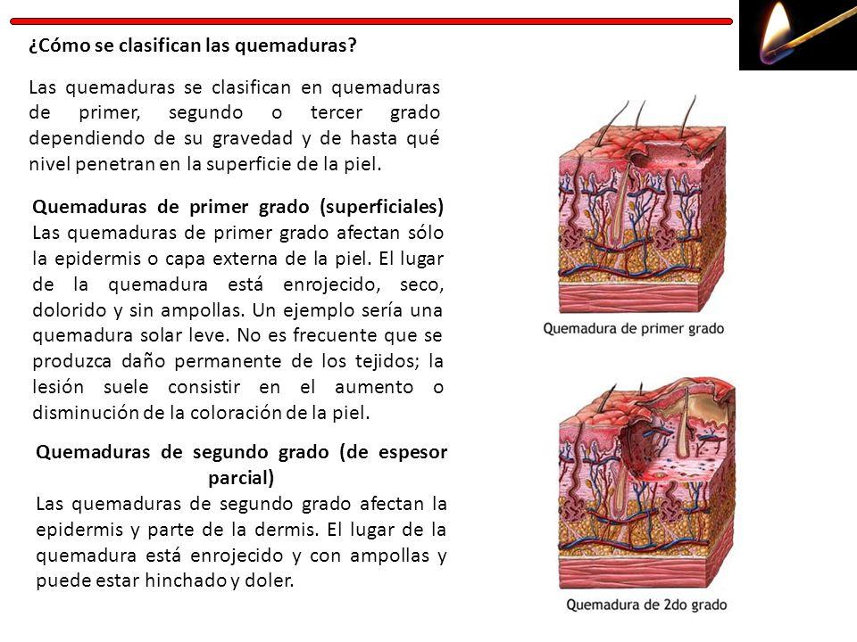 ¿Cómo se clasifican las quemaduras? Las quemaduras se clasifican en quemaduras de primer, segundo o tercer grado dependiendo de su gravedad y de hasta