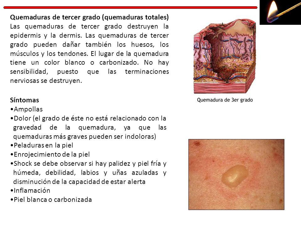 Quemaduras de tercer grado (quemaduras totales) Las quemaduras de tercer grado destruyen la epidermis y la dermis. Las quemaduras de tercer grado pued