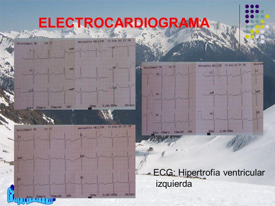 ELECTROCARDIOGRAMA ECG: Hipertrofia ventricular izquierda