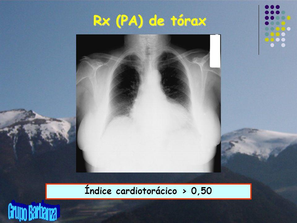 Rx (PA) de tórax Índice cardiotorácico > 0,50