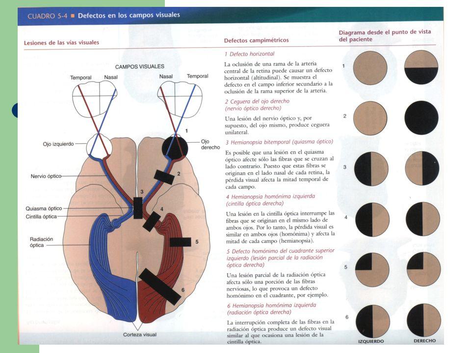 Parálisis del III par craneal El III par craneal inerva los músculos: 1.
