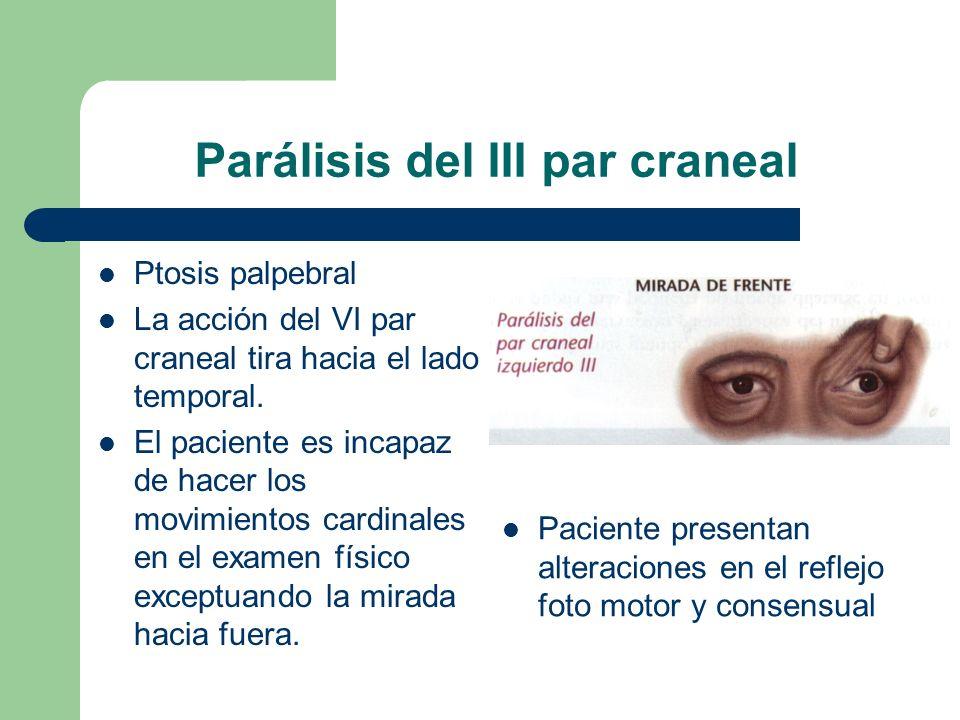 Parálisis del III par craneal Ptosis palpebral La acción del VI par craneal tira hacia el lado temporal. El paciente es incapaz de hacer los movimient