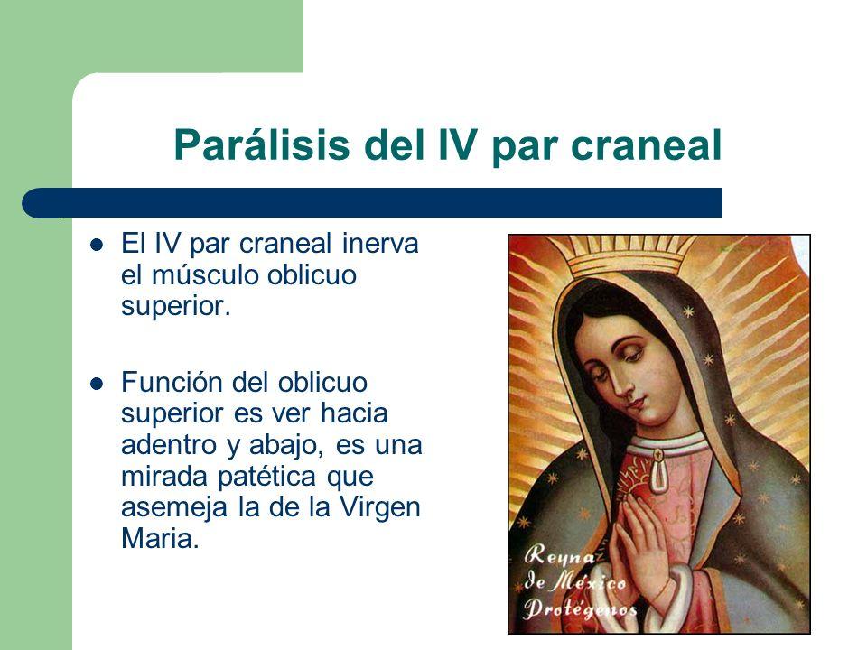 Parálisis del IV par craneal El IV par craneal inerva el músculo oblicuo superior.