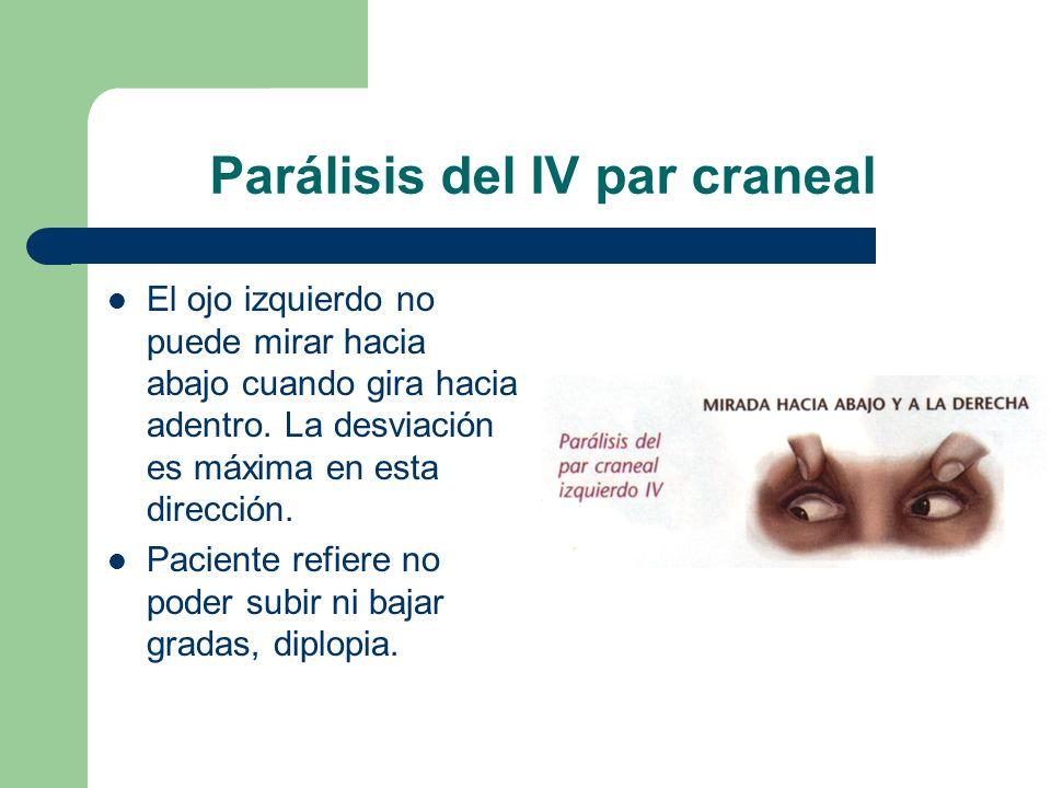 Parálisis del IV par craneal El ojo izquierdo no puede mirar hacia abajo cuando gira hacia adentro. La desviación es máxima en esta dirección. Pacient