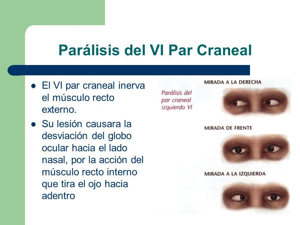 Parálisis del VI Par Craneal El VI par craneal inerva el músculo recto externo. Su lesión causara la desviación del globo ocular hacia el lado nasal,