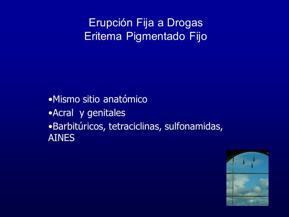 Erupción Fija a Drogas Eritema Pigmentado Fijo Mismo sitio anatómico Acral y genitales Barbitúricos, tetraciclinas, sulfonamidas, AINES