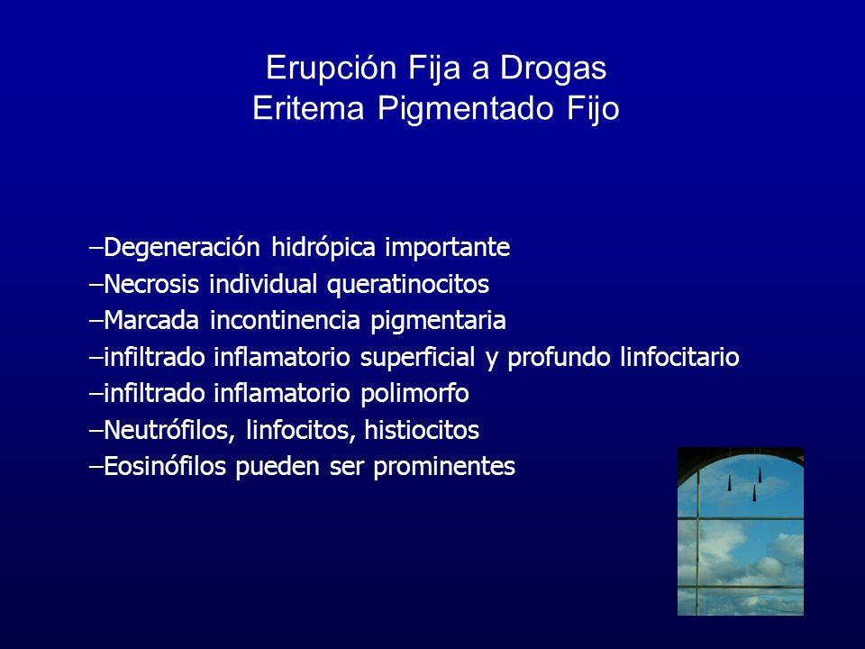 Erupción Fija a Drogas Eritema Pigmentado Fijo –Degeneración hidrópica importante –Necrosis individual queratinocitos –Marcada incontinencia pigmentar