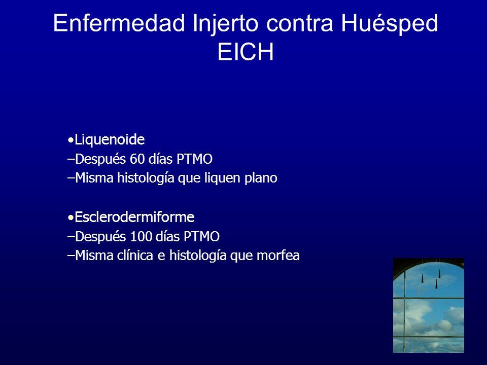 Enfermedad Injerto contra Huésped EICH Liquenoide –Después 60 días PTMO –Misma histología que liquen plano Esclerodermiforme –Después 100 días PTMO –M