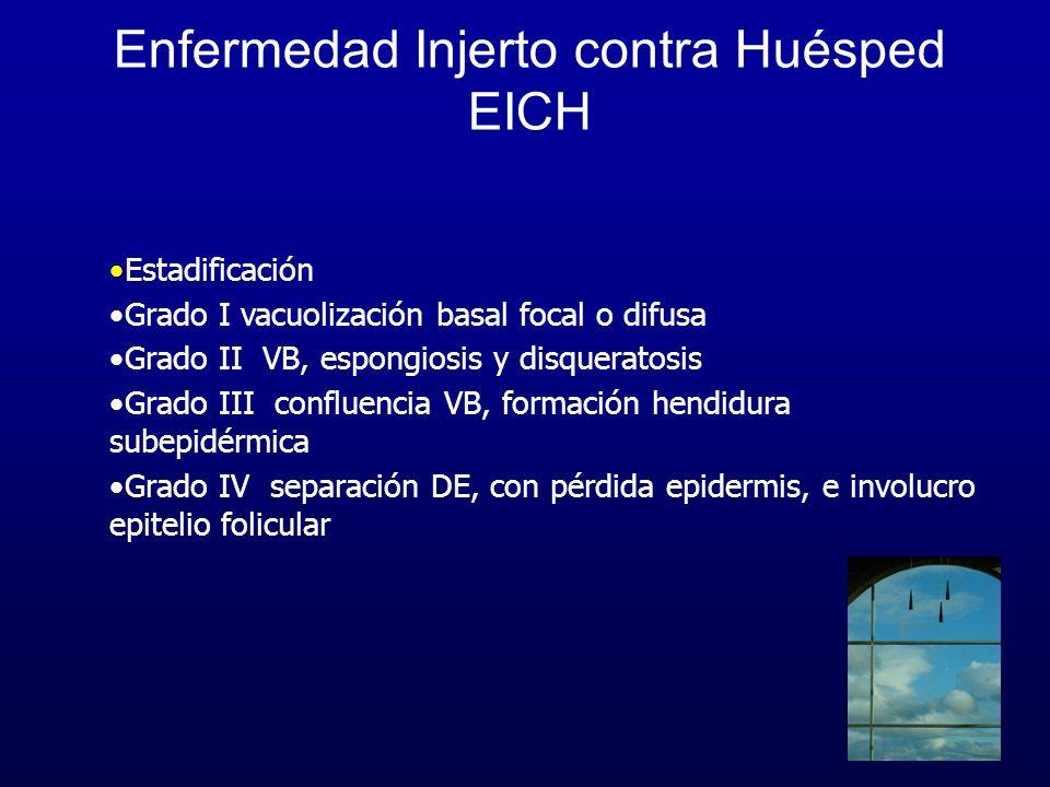 Enfermedad Injerto contra Huésped EICH Estadificación Grado I vacuolización basal focal o difusa Grado II VB, espongiosis y disqueratosis Grado III co