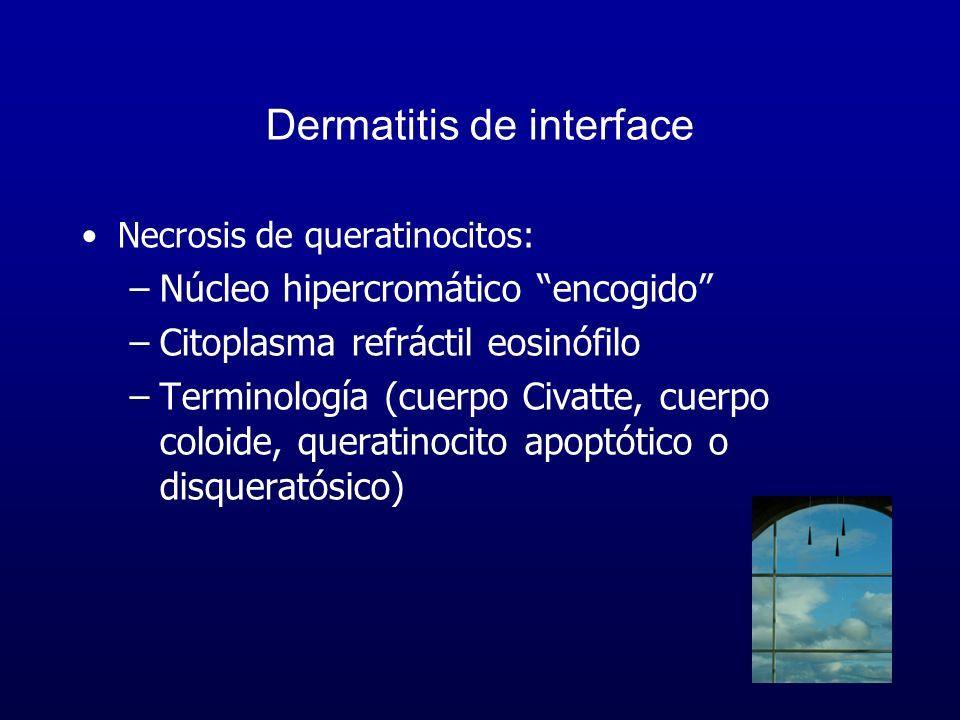 Dermatitis de interface Necrosis de queratinocitos: –Núcleo hipercromático encogido –Citoplasma refráctil eosinófilo –Terminología (cuerpo Civatte, cu