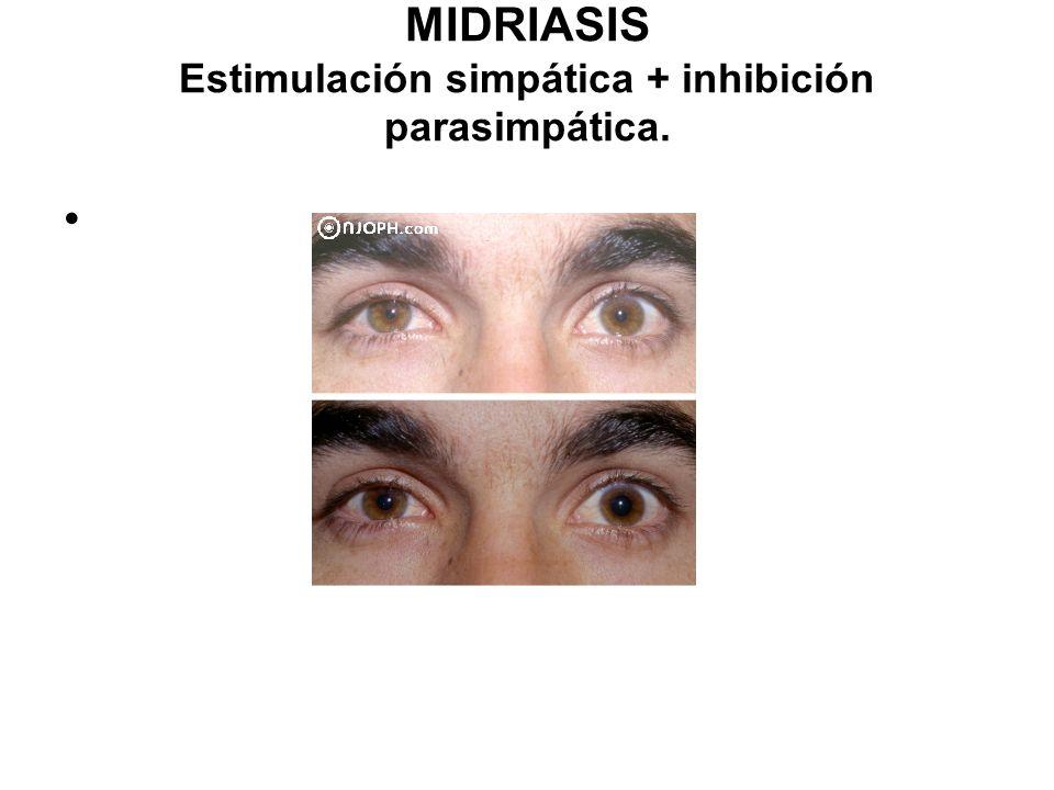 MIDRIASIS Estimulación simpática + inhibición parasimpática.