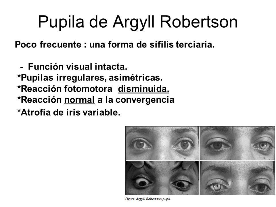Pupila de Argyll Robertson Poco frecuente : una forma de sífilis terciaria. - Función visual intacta. *Pupilas irregulares, asimétricas. *Reacción fot