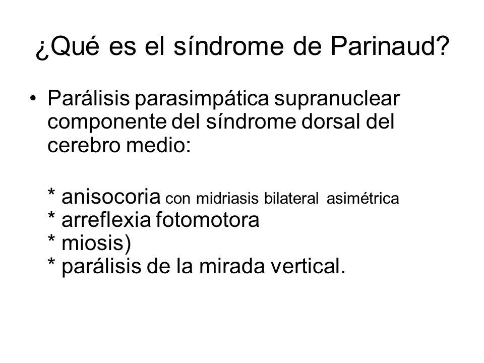¿Qué es el síndrome de Parinaud? Parálisis parasimpática supranuclear componente del síndrome dorsal del cerebro medio: * anisocoria con midriasis bil