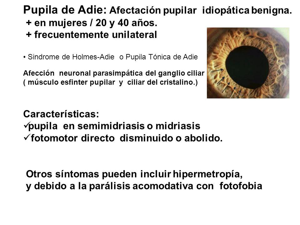 Pupila de Adie: Afectación pupilar idiopática benigna. + en mujeres / 20 y 40 años. + frecuentemente unilateral Sindrome de Holmes-Adie o Pupila Tónic