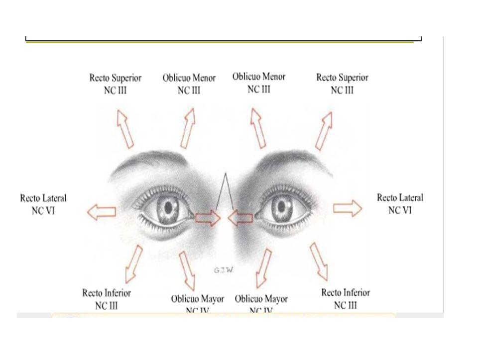 Vean la diferencia entre lesión nuclear ( mesencéfalo lateral) En donde se afectarían los 5 o 6 súbnúcleos.