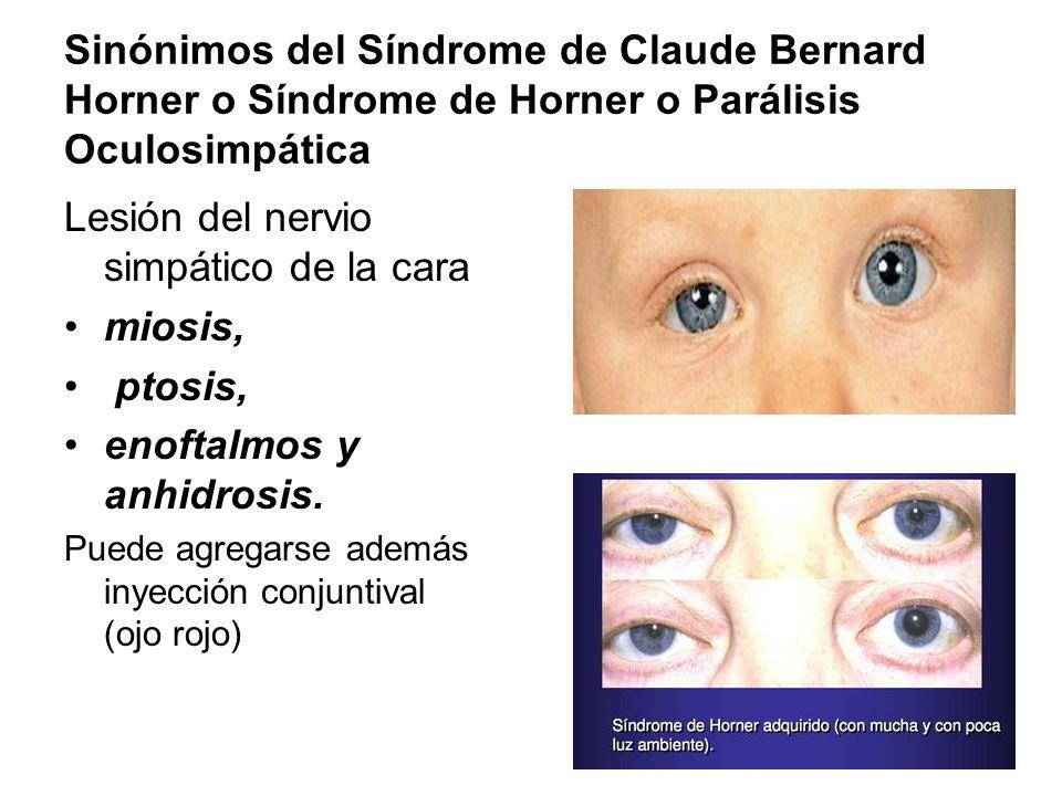 Sinónimos del Síndrome de Claude Bernard Horner o Síndrome de Horner o Parálisis Oculosimpática Lesión del nervio simpático de la cara miosis, ptosis,