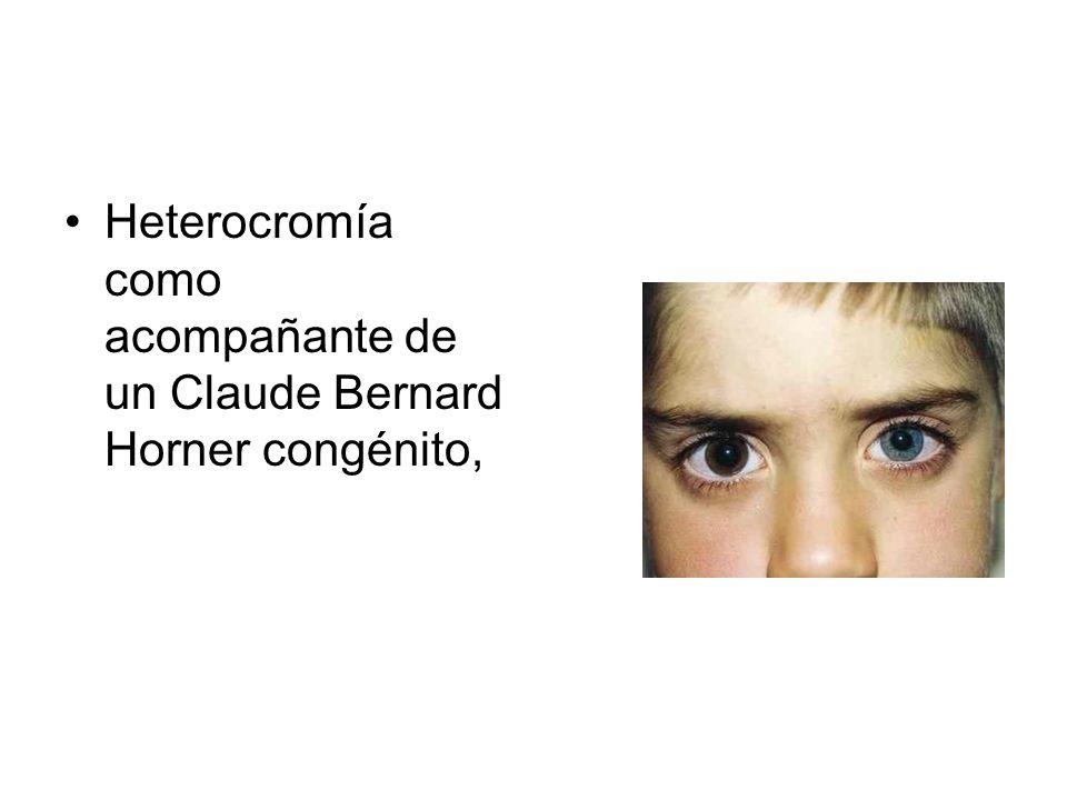 Heterocromía como acompañante de un Claude Bernard Horner congénito,