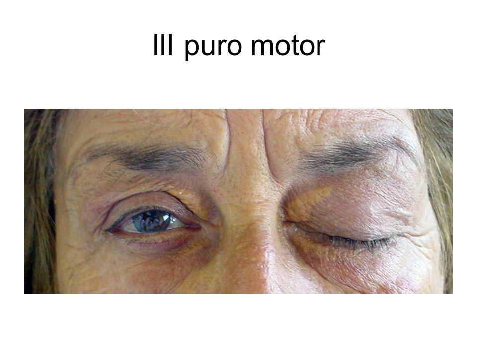 III puro motor