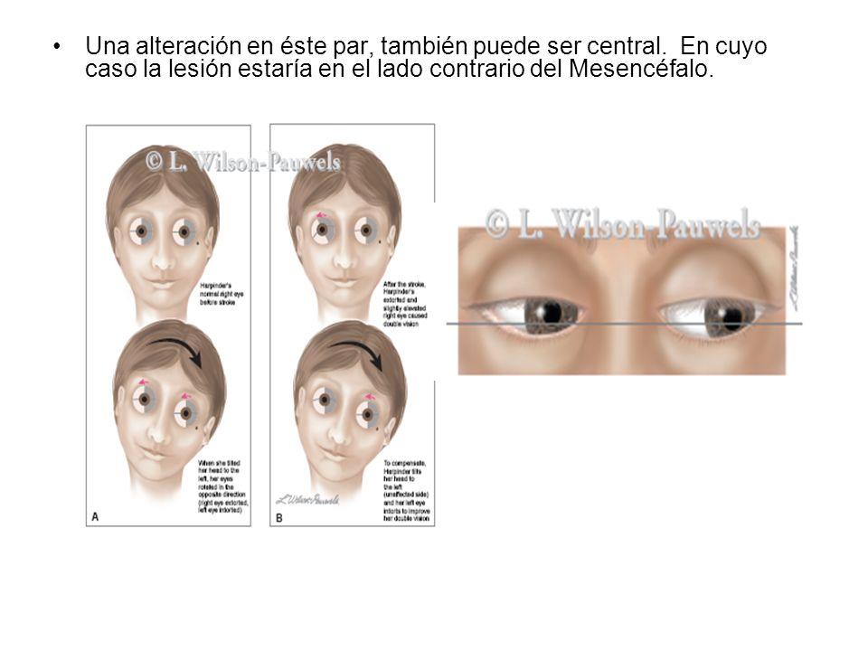 Una alteración en éste par, también puede ser central. En cuyo caso la lesión estaría en el lado contrario del Mesencéfalo.