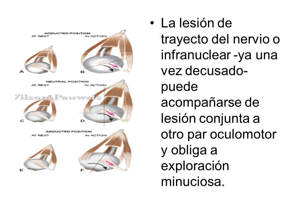 La lesión de trayecto del nervio o infranuclear -ya una vez decusado- puede acompañarse de lesión conjunta a otro par oculomotor y obliga a exploració
