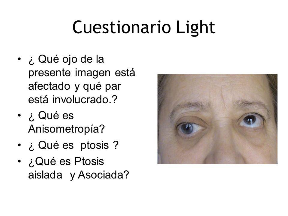 ¿ Qué ojo de la presente imagen está afectado y qué par está involucrado.? ¿ Qué es Anisometropía? ¿ Qué es ptosis ? ¿Qué es Ptosis aislada y Asociada