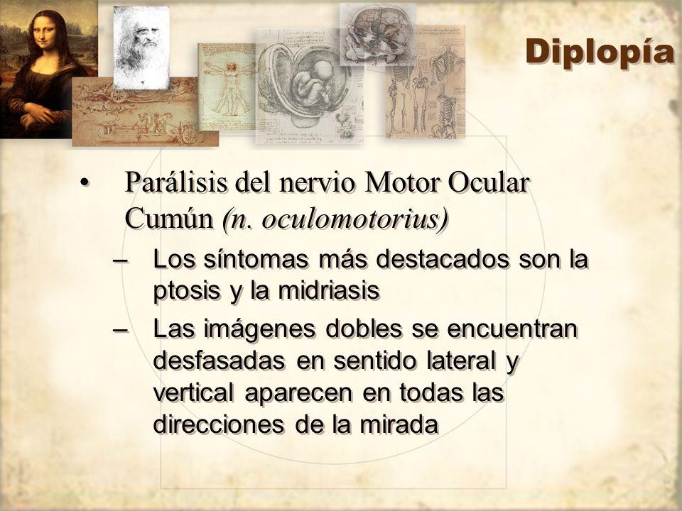 Diplopía Parálisis del nervio Motor Ocular Cumún (n. oculomotorius) –Los síntomas más destacados son la ptosis y la midriasis –Las imágenes dobles se