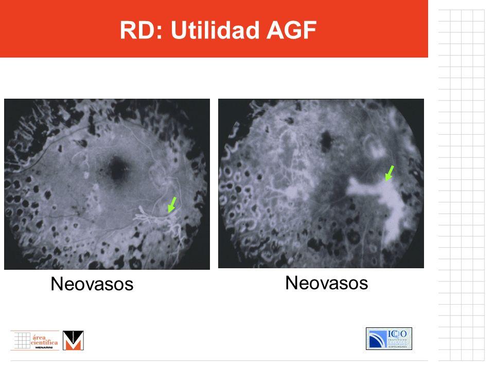 Control estricto glucemia (Hb A1C) Control HTA concomitante Antiagregantes plaquetarios Protectores microcirculación RD: Tratamiento MédicoCoadyuvante =