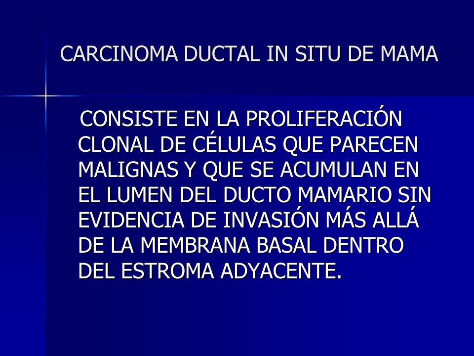 CARCINOMA DUCTAL IN SITU DE MAMA CONSISTE EN LA PROLIFERACIÓN CLONAL DE CÉLULAS QUE PARECEN MALIGNAS Y QUE SE ACUMULAN EN EL LUMEN DEL DUCTO MAMARIO S