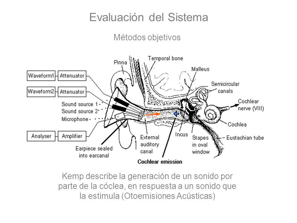 Evaluación del Sistema Métodos objetivos Kemp describe la generación de un sonido por parte de la cóclea, en respuesta a un sonido que la estimula (Ot