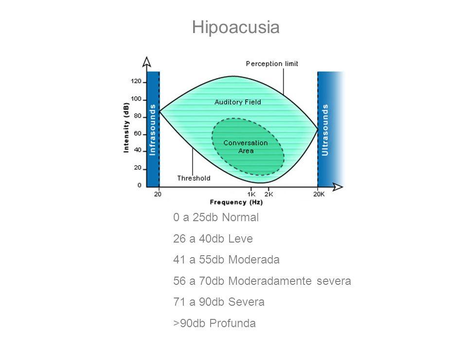 Hipoacusia 0 a 25db Normal 26 a 40db Leve 41 a 55db Moderada 56 a 70db Moderadamente severa 71 a 90db Severa >90db Profunda